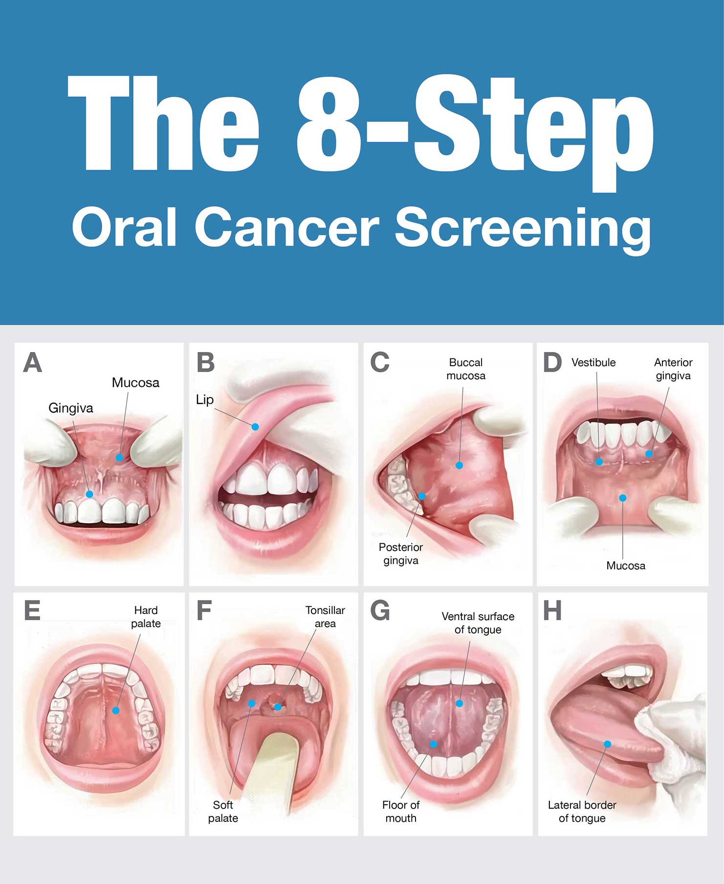 Oral Cancer :: Best Dental Clinic In Rajapalayam,Best
